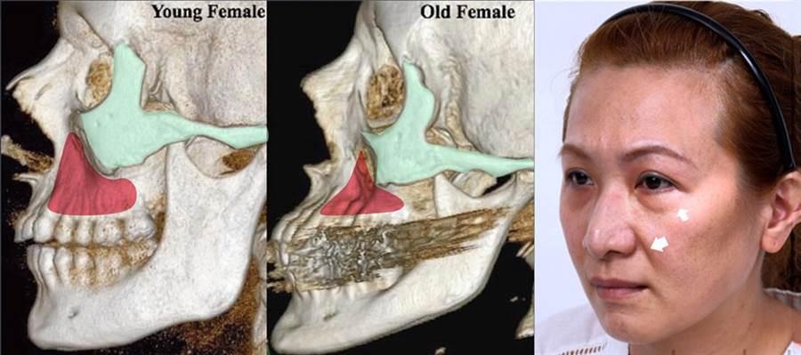 ▲法令紋與淚溝,和顴骨、眼眶骨、上顎骨的體積流失有很大的關係。由圖可見,從年輕到老年,骨頭體積明顯減少。(圖片來源:上立皮膚科診所)