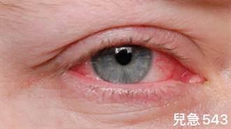 小心粉紅色眼睛!醫:新冠病毒「這能力」比SARS強太多