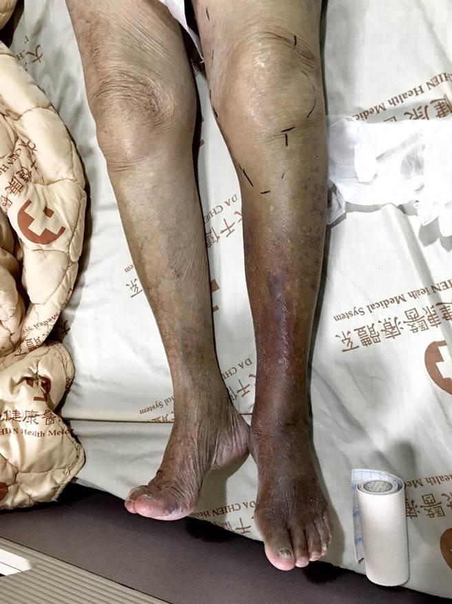 8旬婦左腳發黑  下肢動脈阻塞險截肢