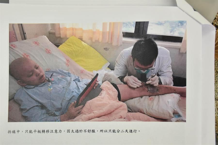 劉庭瑋手術後檢查,竟咬牙看著IPAD忍過。〔竹南國中提供/謝明俊苗栗傳真〕