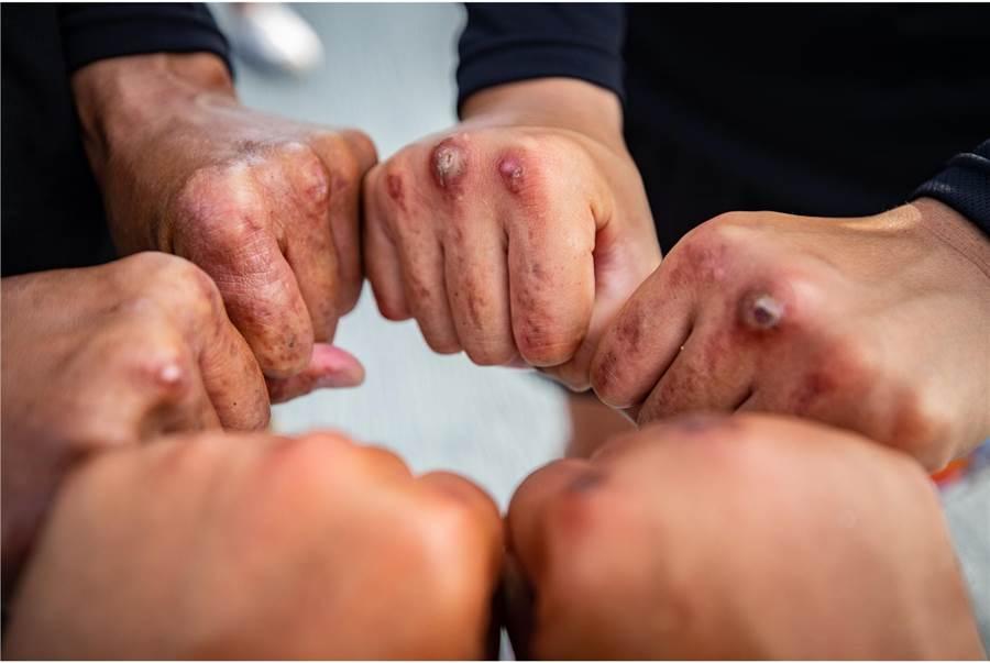 陸戰莒拳隊著名嚴苛的「正拳」伏地挺身魔鬼訓練的訓練痕跡。(青年日報提供)