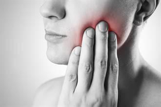 妙齡女牙周病未及時治療 牙齒鬆動搖晃保不住!