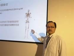 憂疫情延誤就醫 攝護腺癌合併骨轉移