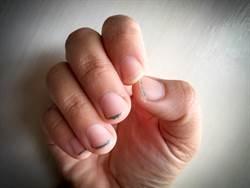 手指長短影響病菌量?醫揭真相:這狀況才爆菌