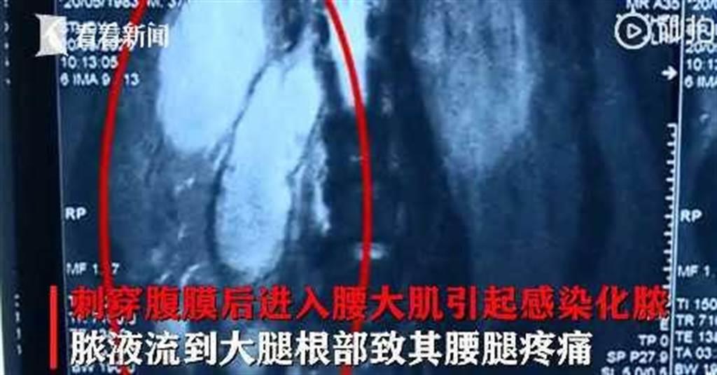 牙籤引起感染化膿,進而導致男子長期腰腿疼痛。(圖/翻攝自看看新聞)