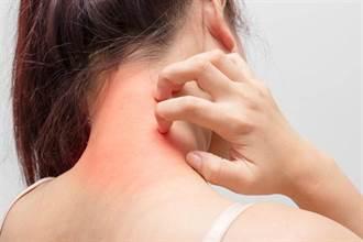 沒病卻老是頭痛、腰酸背痛 醫:4姿勢害的