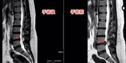 肉肉女姿勢不良釀椎間盤破裂 內視鏡手術成功遠離疼痛