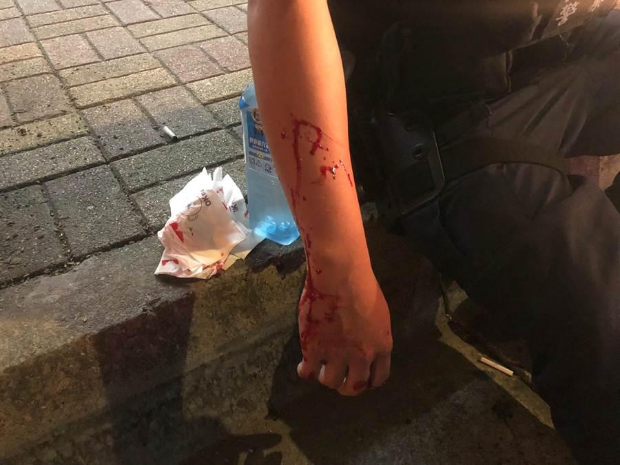 員警見徐男欲逃逸,機警持棍破窗逮人,右手不慎遭玻璃割傷,送醫包紮後無大礙。(翻攝照片/賴彥竹新北傳真)