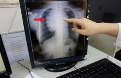 國中少女咳嗽皮膚癢 竟是淋巴癌