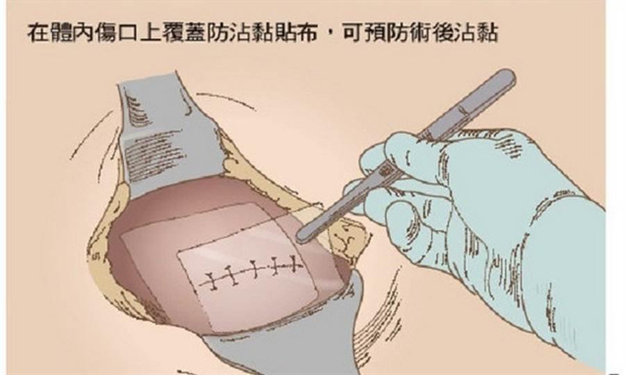 手術時使用防沾黏貼片,有助於降低術後未來發生腸沾黏的機會。(圖片來源:蕭智綸繪)