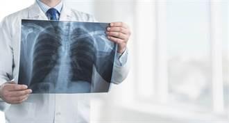 追劇3天出現這症狀 櫃姐肺部塌掉...醫警告:恐猝死