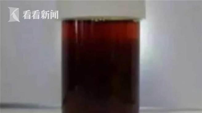 大陸一名男子在劇烈運動後,解尿時發現自己尿出黑色的醬油尿,嚇得趕緊就醫。(圖/翻攝看看新聞)