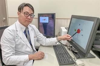 3D腹腔鏡手術移除人工肛門正常排便