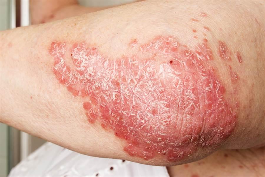 乾癬,又稱為銀屑病,是一種慢性免疫疾病,會反覆發作,因為名字有個「癬」字,很多人會聯想到和黴菌感染有關。(示意圖/Shutterstock)
