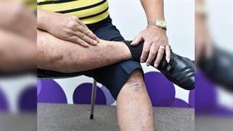 乾癬性關節炎恐有不可逆傷害!常見症狀有這些