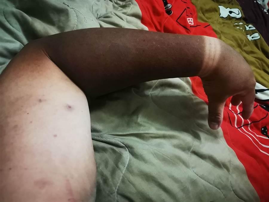 遶境2天沒防曬 他手臂曬到燒焦,被形容像焦屍。(翻攝自 爆廢公社)