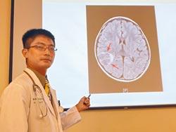 腦瘤引發自動症癲癇 手術勝收驚