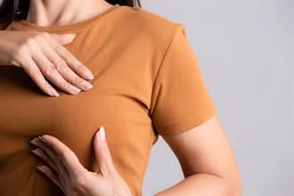 胸部有硬塊不一定是乳癌!學會自摸檢查不用怕