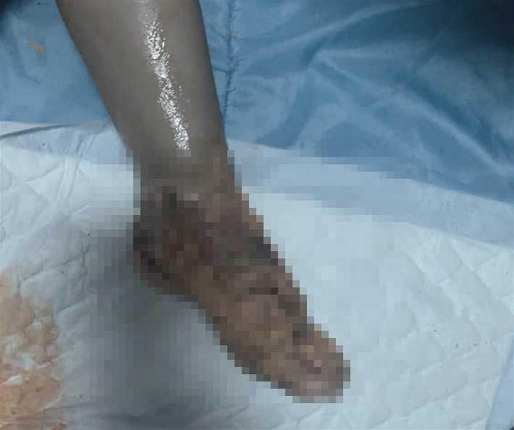 橘色的藥膏也蓋不住女童已經發黑的腳背皮膚。(圖/臉書)