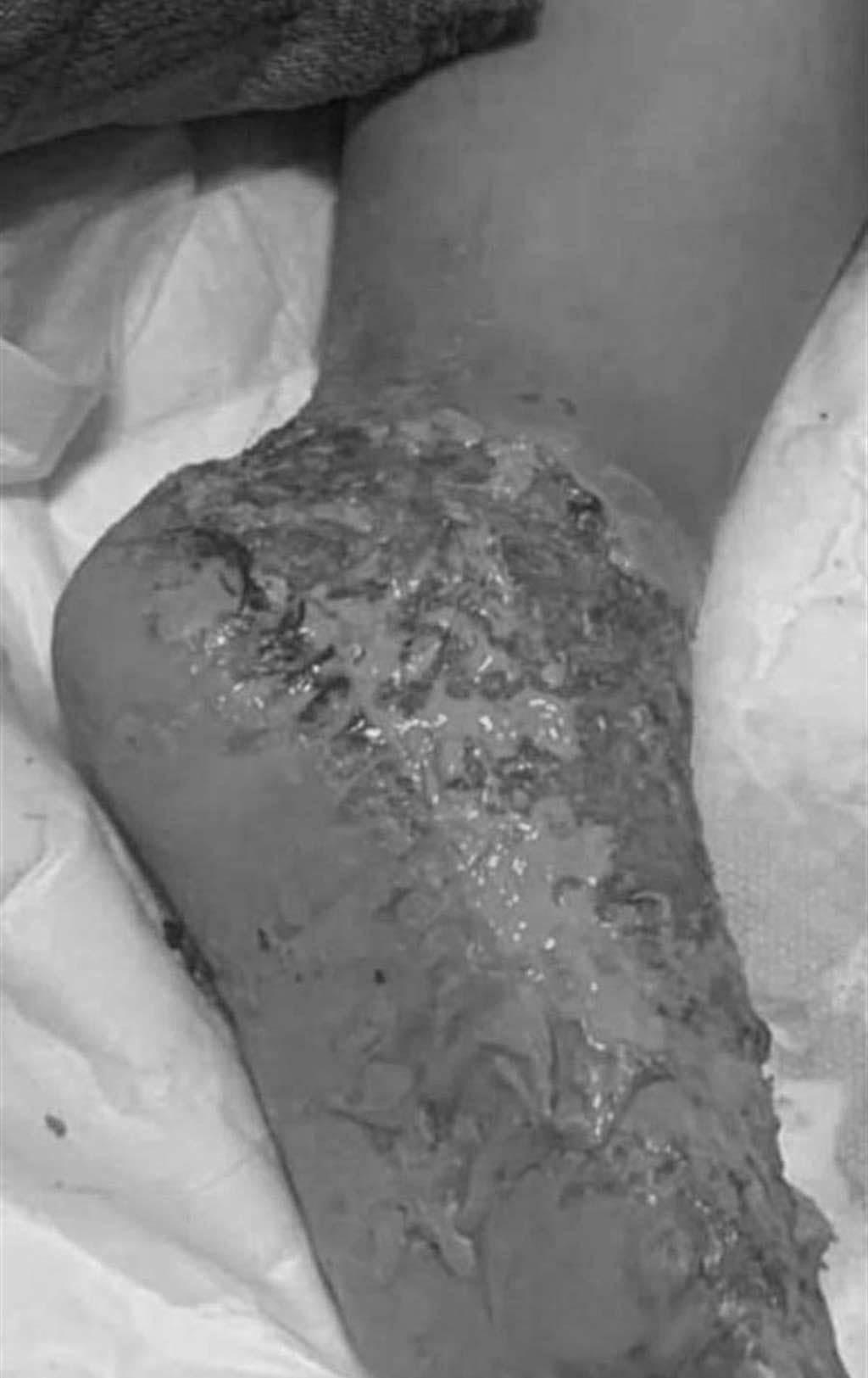 女童雙腳燙傷嚴重潰瀾,讓人不捨。(摘自台南爆料公社)