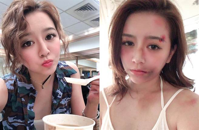 李妍憬貼出臉部傷照,讓粉絲相當擔心。(取材自李妍憬臉書)