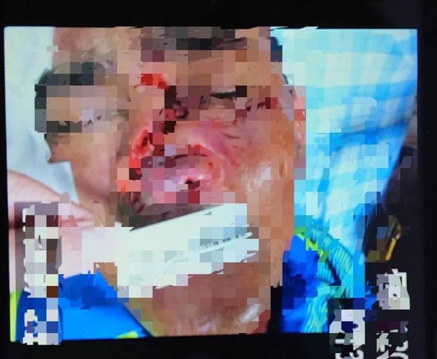 紀姓男子27日在恆春出火風景區遭流浪犬咬傷,臉及鼻樑處有多處撕裂傷,鼻子差點被咬掉,讓人怵目驚心。(翻攝畫面/潘建志屏東傳真)