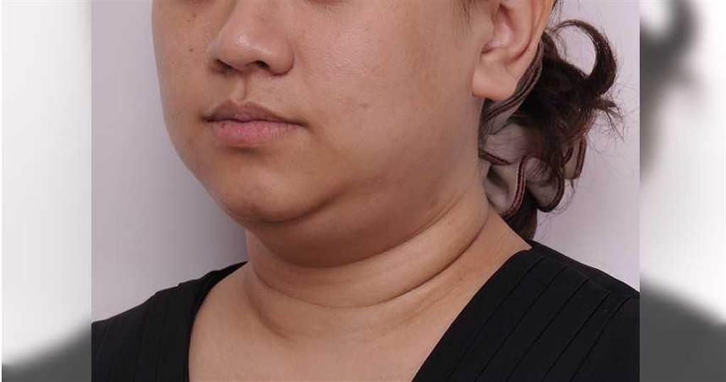 雙下巴讓人有「臉大脖子粗」的感覺,鬆垮的皮膚線條讓人看來蒼老。(圖/彭賢禮醫師提供)