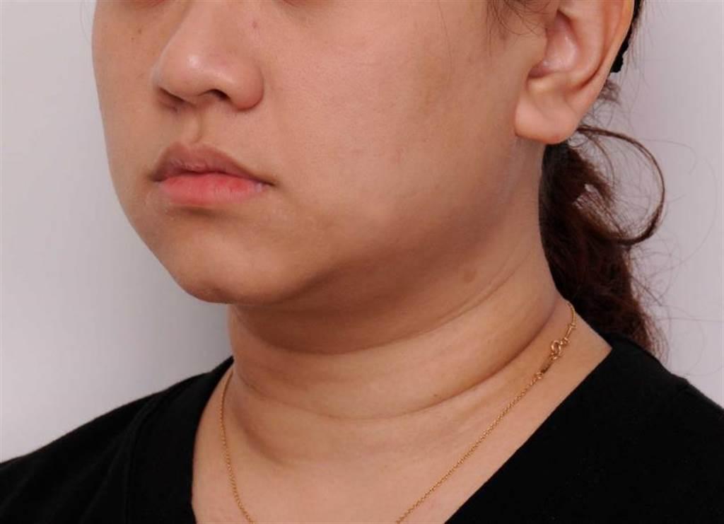 進行雙下巴消脂針手術之後,下巴輪廓線變得明顯,整個人感覺更有活力。(圖/彭賢禮醫師提供)