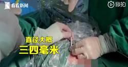 10歲男童血尿「膀胱拉出1.5M電線」!自曝「5年前無聊塞進去的」