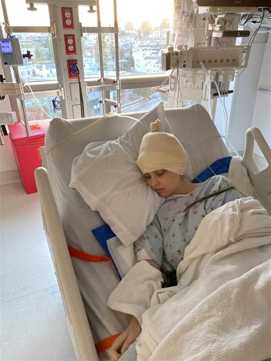 艾蜜莉亞曝光自己長腦瘤,已經手術,曝光的病容照讓人看了心疼。(翻攝自艾蜜莉亞西爾斯推特)