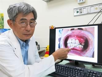 恐怖副作用!5患者服用骨鬆藥 拔牙後傷口壞死