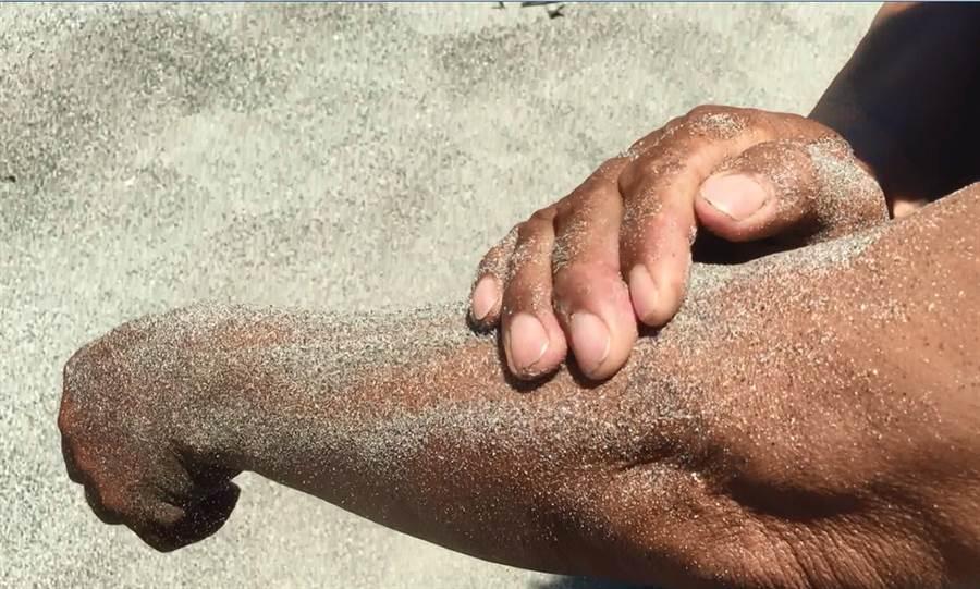 在海邊戲水萬一被水母螫傷,用熱沙敷抹,是阿美族傳統偏方(民眾提供/莊哲權台東傳真)