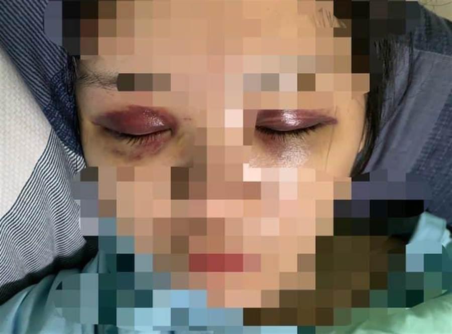 女子日前慘遭前男友狂歐,臉部、眼睛嚴重瘀青,事後還遭前男友不斷騷擾。(摘自臉書《爆料公社》)