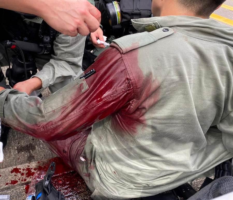 一名香港警員在逮捕遊行示威者時遭尖刀由後方刺傷左肩,血流如注。據稱案犯連夜離港時在機場被捕,身上還被搜出英國領事館提供的緊急機票。(圖/路透)