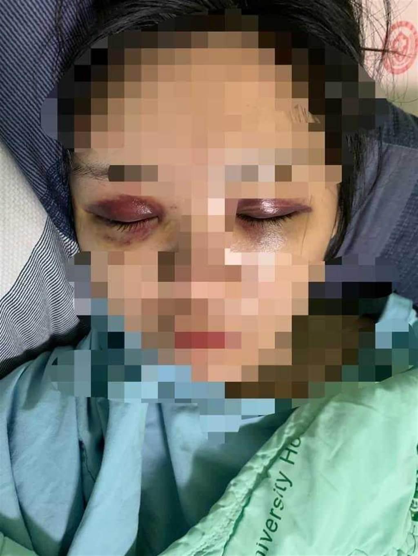 22歲正妹遭痛毆!小腿被打斷「爬腳邊求救」,狠男家人冷回:太愛她才失控。(圖/爆料公社)
