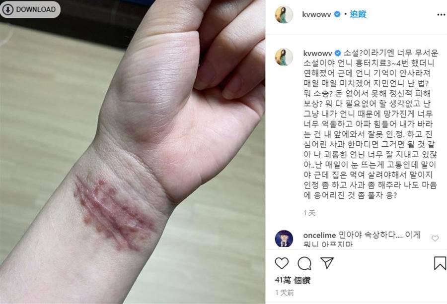 權珉娥曬出因不堪霸凌自殘的照片。(取自權珉娥IG)