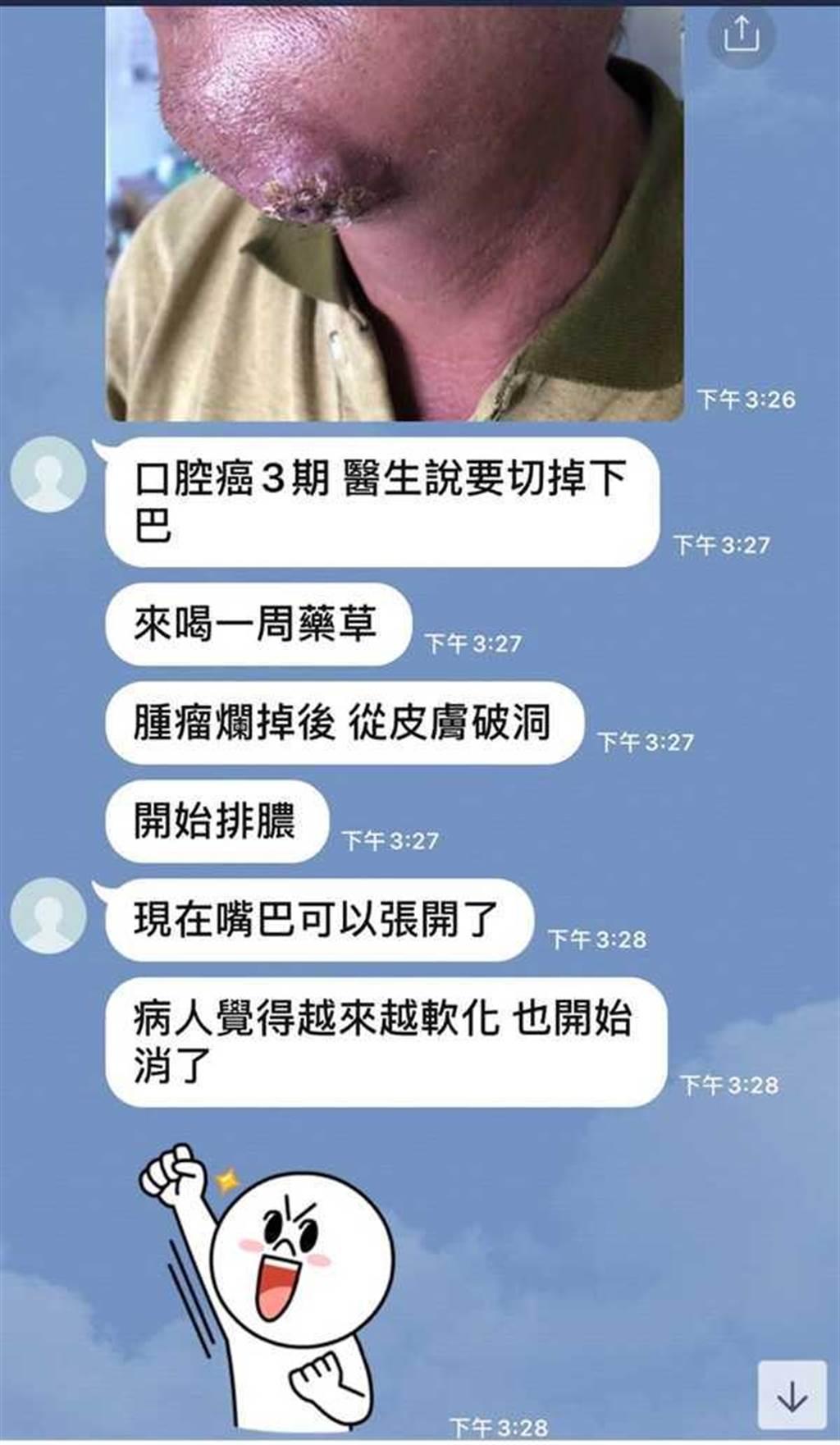 根據鄭勝哲與友人的對話紀錄,他洋洋得意宣稱,有口腔癌三期患者喝他的草藥而開始排膿,庸醫行徑讓人髮指。(圖/讀者提供)