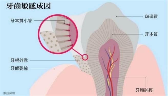 清除了堆積在牙根、牙縫間的牙結石,沒有琺瑯質保護的「牙根」暴露後,牙齒對冷熱溫度變化或酸的食物會比較敏感。(圖/pixabay)