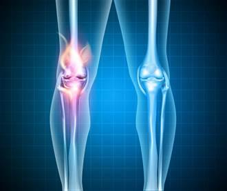 退化性關節炎與肌腱炎患者的新選擇 羊膜基質正式出現在台灣