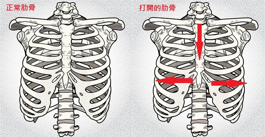 當駝背重心往前時,會使肋骨會往下掉,兩側肋骨打開,裡面的內臟自然往下掉落,小腹變突出。(達志)