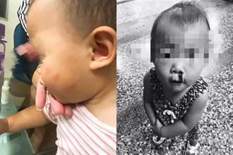 無良保母狠掌摑1歲女嬰 臉上佈掌紋5天爆3次鼻血 母心疼死
