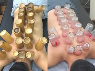神奇拔火罐揭身體秘密 中醫師:通經解熱排濕氣