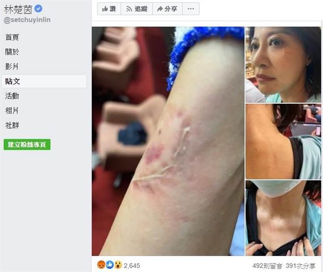 林楚茵臉書貼出受傷照片。