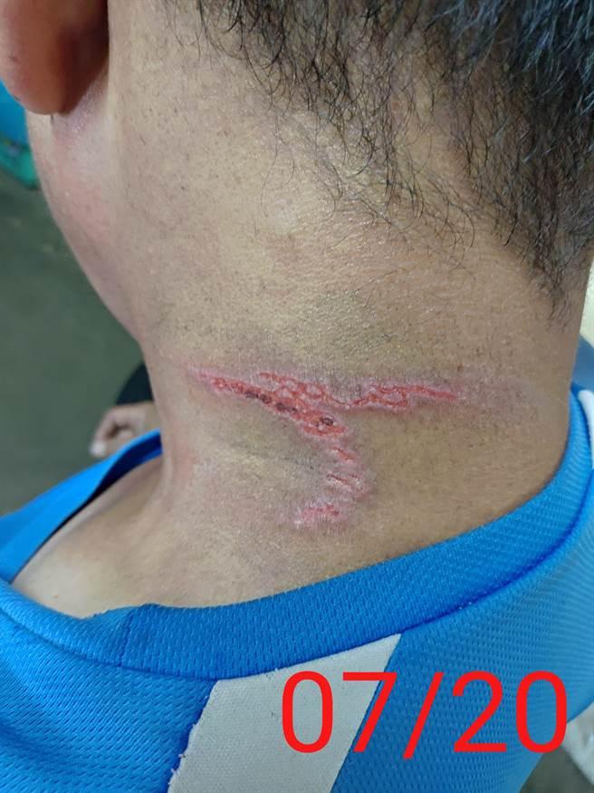 蔡男將爬上脖子的隱翅蟲拍掉,後頸處皮膚因此出現大片明顯的紅腫傷痕。(蔡男提供/謝瓊雲彰化傳真)