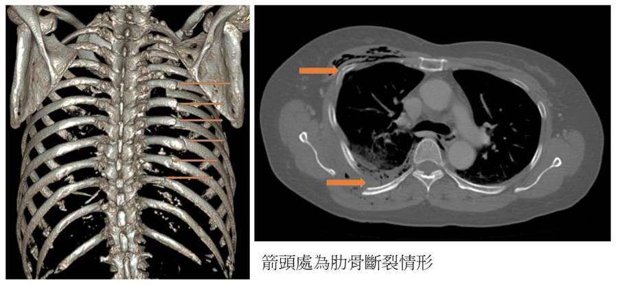 64歲婦人送醫時電腦斷層發現右側鎖骨骨折、右側第一至第十二肋骨骨折合併氣血胸。(澄清醫院提供/馮惠宜台中報導)