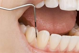 停經後婦女牙周病罹患率倍增 影響咬合有3害