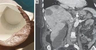 婦人拉出閃亮「銀色糞便」!頭暈2週醫檢查:患有轉移性大腸癌