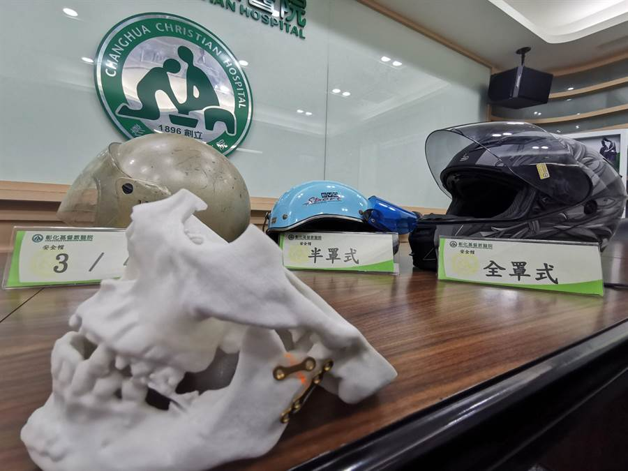 中台灣顏面骨骨骨折第一名佔機車事故90%以上。(彰化基督教醫院提供/吳敏菁彰化傳真)