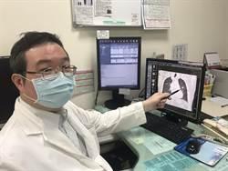 7旬翁被芒果樹幹砸中胸部就醫 竟意外確診惡性腫瘤