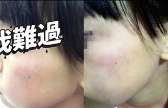 誇張!9歲女童被師求自甩巴掌200下 雙頰紅腫母氣哭  法院判決出爐